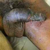 097 Gangrene -a-.jpg
