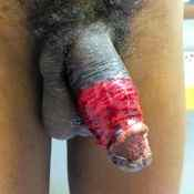 113 Large wound.jpg